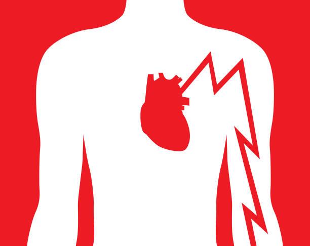 stockillustraties, clipart, cartoons en iconen met hart aanval linker arm pijn - alleen één jonge man