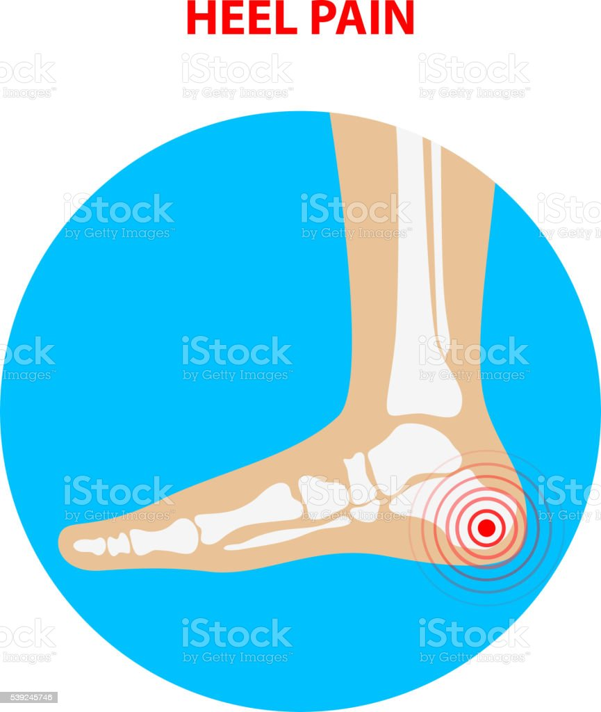 heel pain. Human ankle joint icon. Foot health care.  Vector vector art illustration