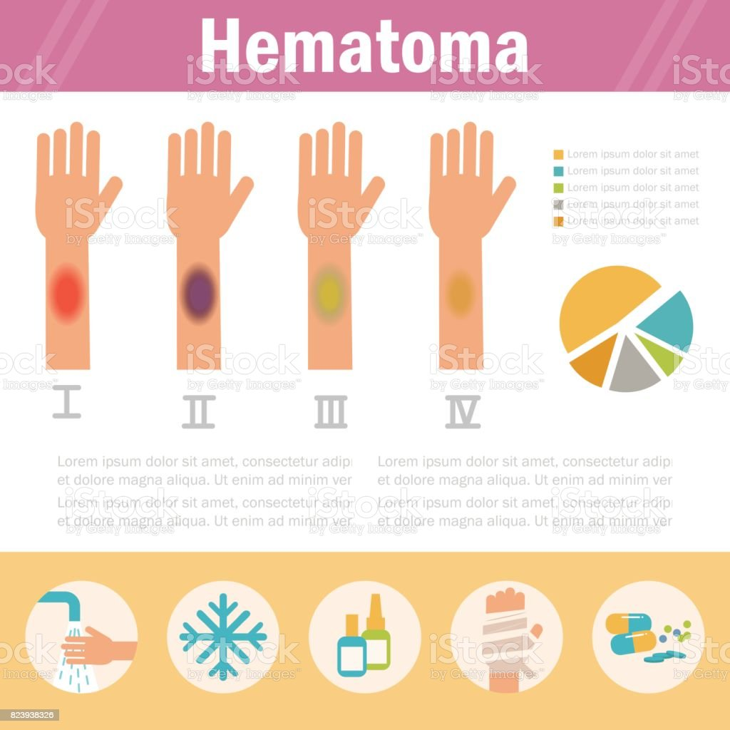Hematoma Stages. Isolated vector art illustration