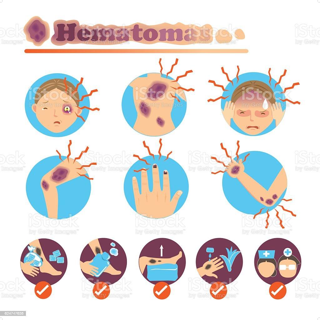 Hematomas vector art illustration