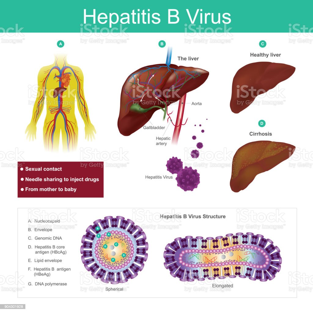 Hepatitis B virus. The virus is mainly transmitted by sexual contact, needle sharing to inject drugs and from mother to baby. Illustration. vector art illustration