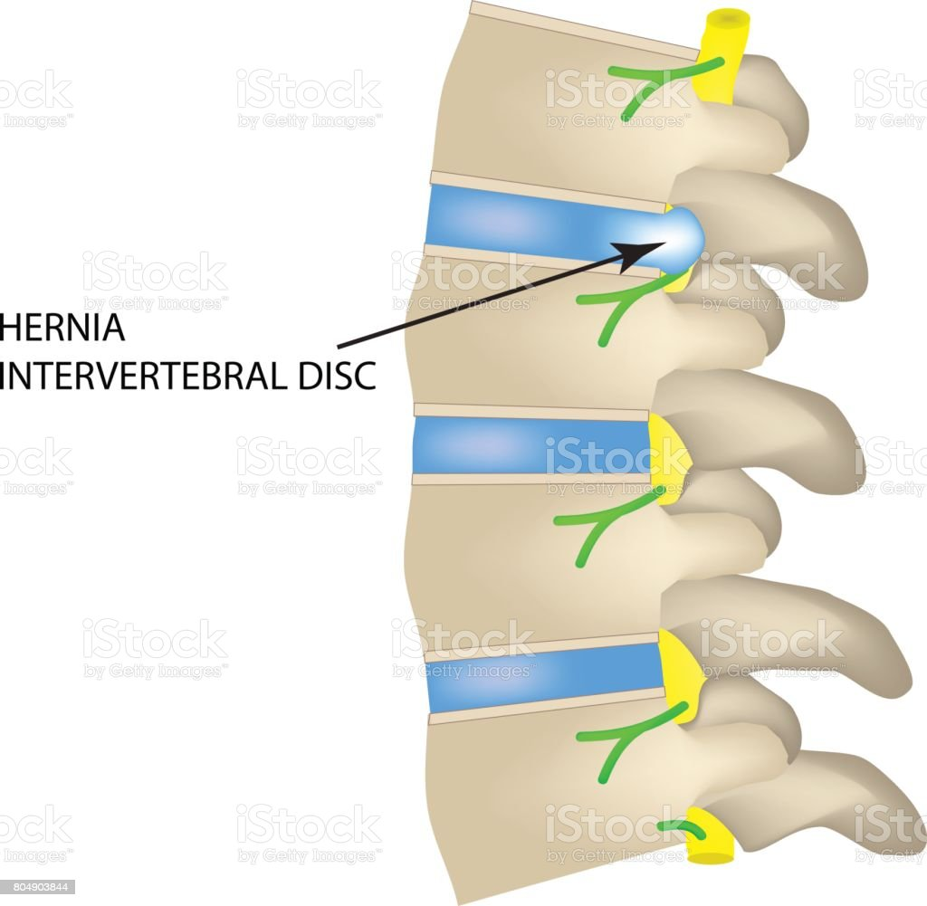 A Hernia Of The Intervertebral Disc Vector Illustration Stock Back Diagram Royalty Free