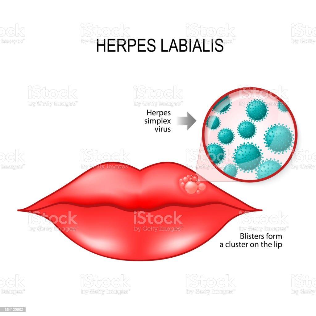 Herpes Labialis Auf Der Lippe Und Herpessimplexvirus Stock Vektor ...