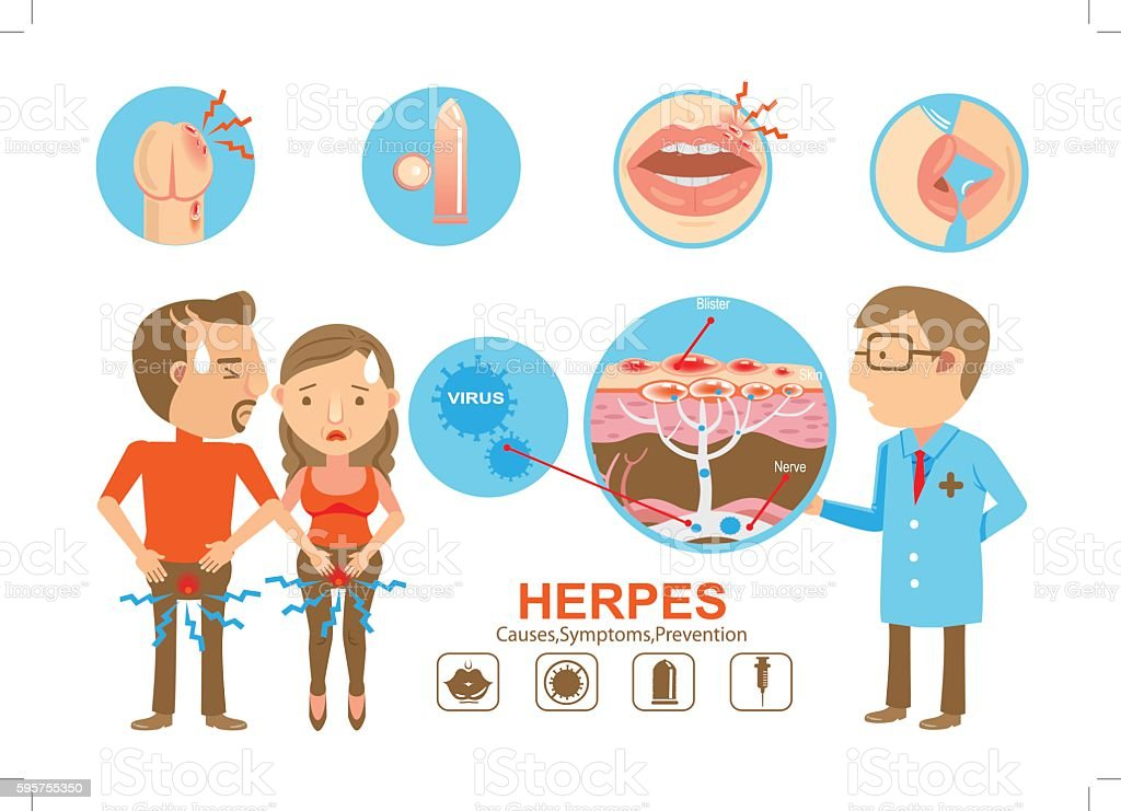 Herpes vector art illustration
