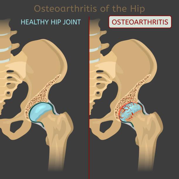 illustrazioni stock, clip art, cartoni animati e icone di tendenza di hip osteoarthritis image - impastare