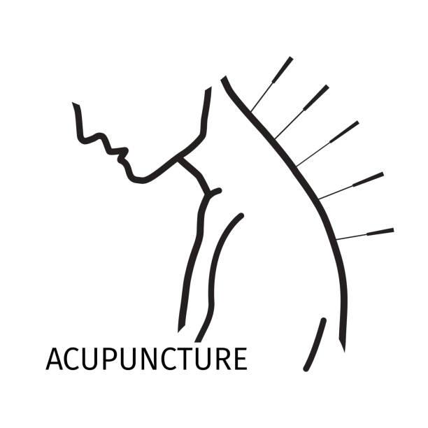 bildbanksillustrationer, clip art samt tecknat material och ikoner med human acupuncture with needles vector illustration. - acupuncture