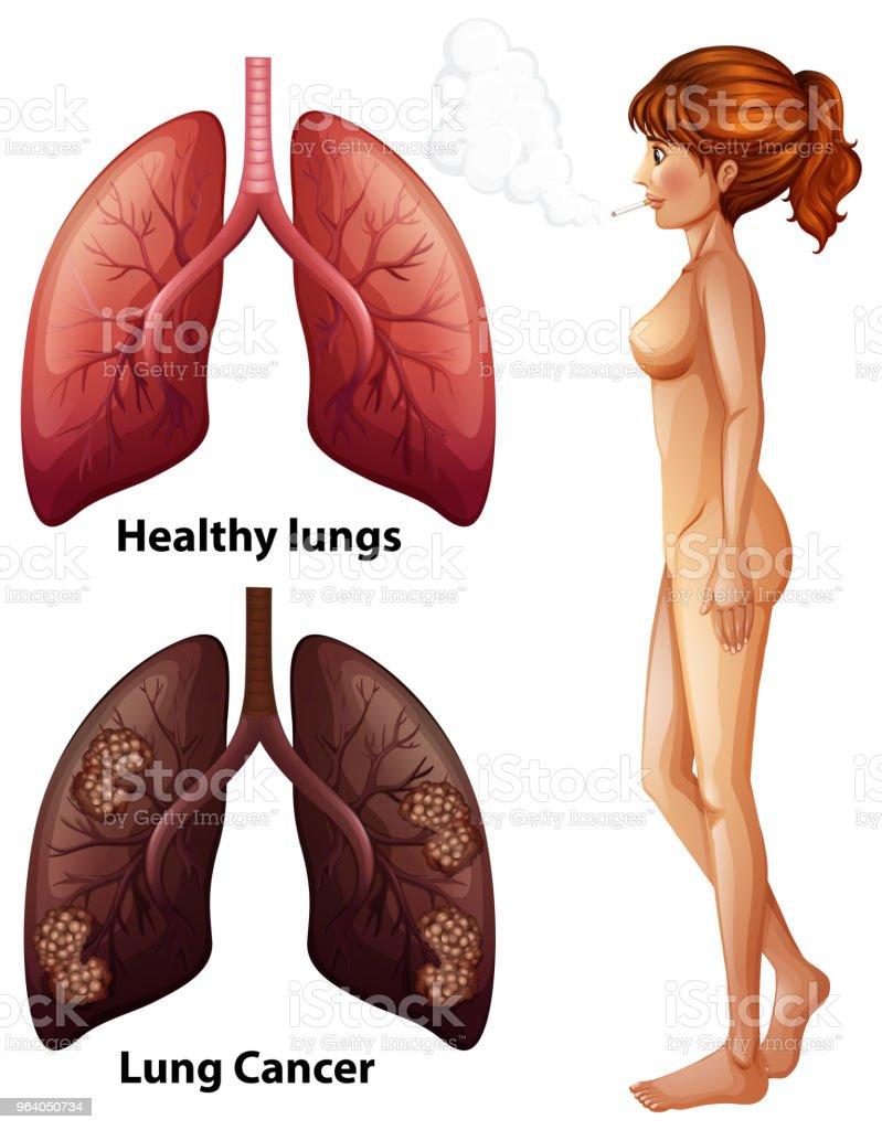 Human Anatomy Lung of Smoker - Royalty-free Anatomy stock vector