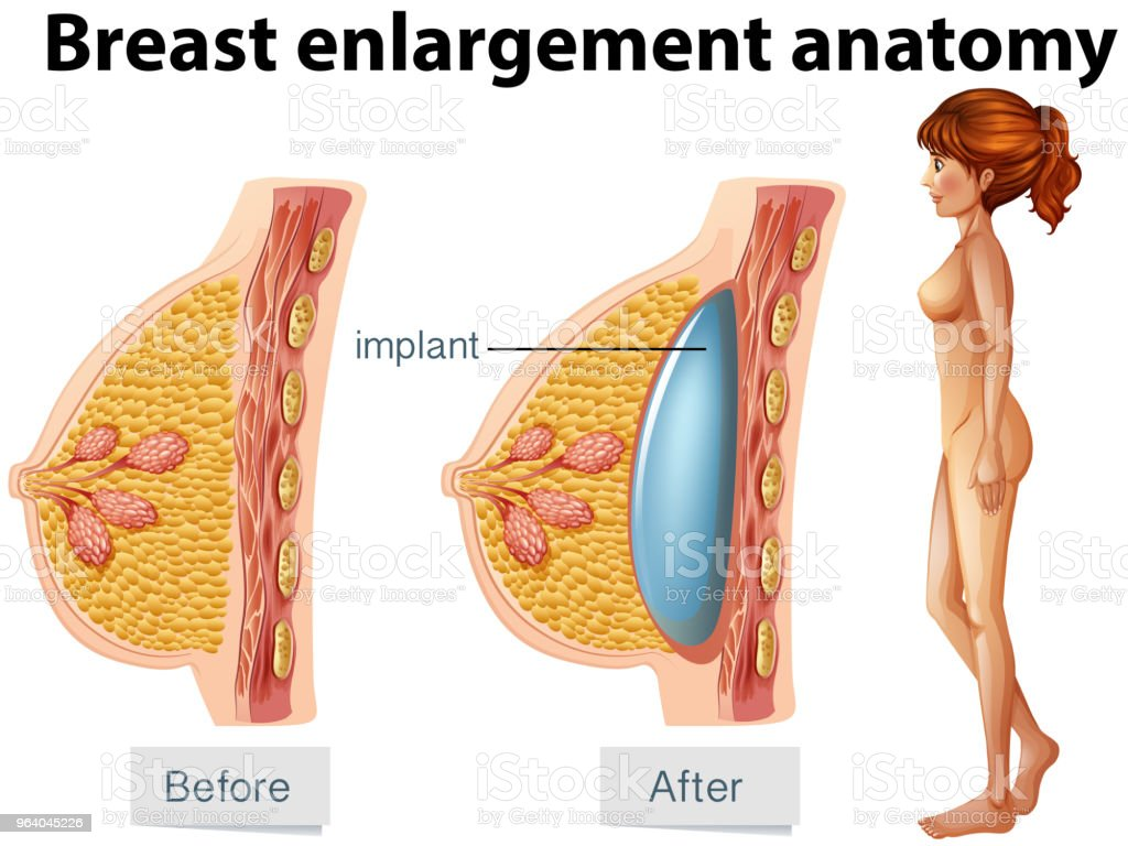 A Human Anatomy Of Breast Implant Stock Vector Art More Images Of
