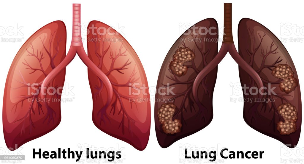 Human Anatomy Of Lung Condition Stock Vector Art & More Images of ...