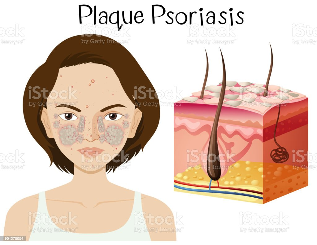 Human Anatomy Of Plaque Psoriasis Stock Vector Art & More Images of ...