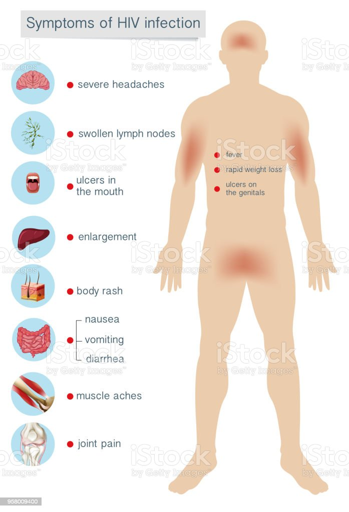hiv symptom bilder