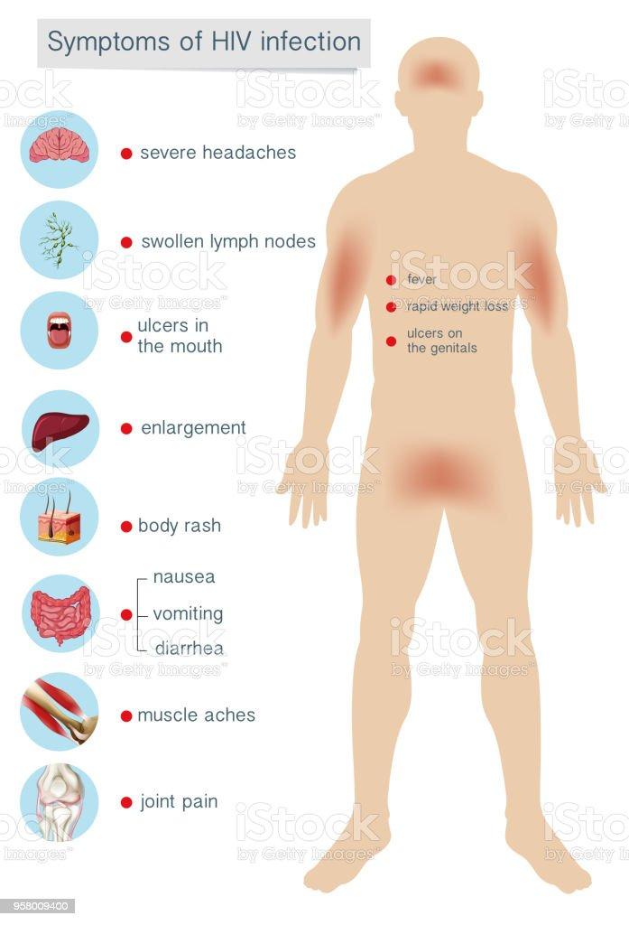 Human Anatomy Symptoms of HIV Infection vector art illustration