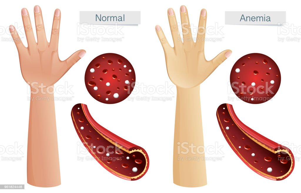 Human Anatomy Vector Of Anemia Stock Vector Art More Images Of