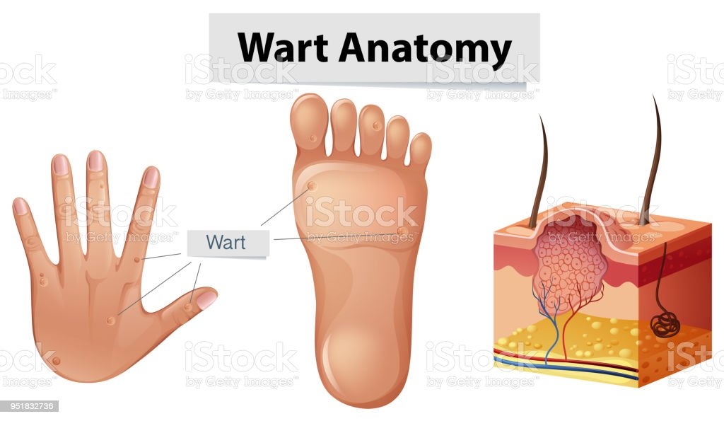 Human Anatomy Wart On Hand And Foot Stock Vector Art & More Images ...
