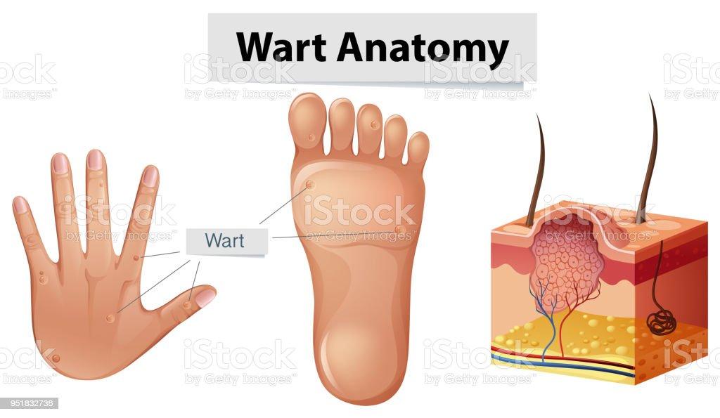 Menschliche Anatomie Warze An Hand Und Fuß Stock Vektor Art und mehr ...