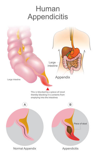 Human Appendicitis. A blocked by a piece of stool thereby blocking it is contents from emptying into intestines. Large Intestine system. Illustration human body parts. vector art illustration