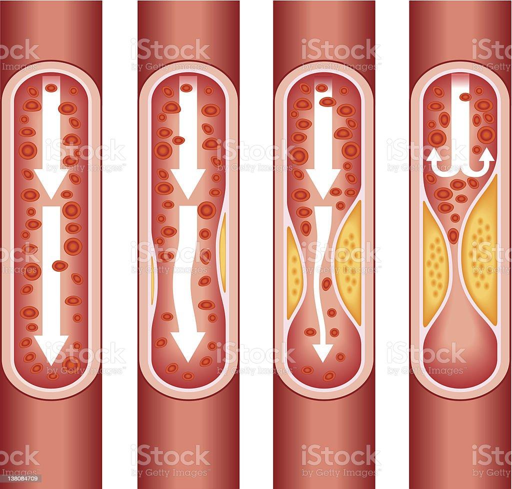 human atherosclerosis royalty-free stock vector art