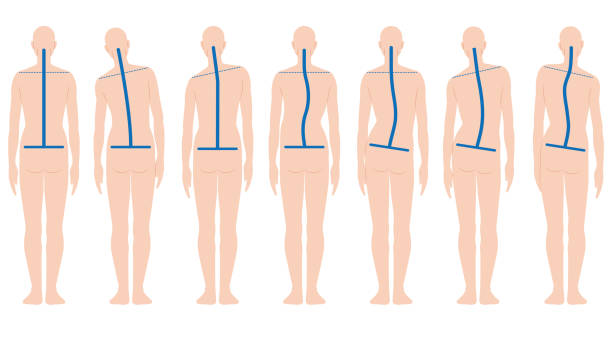 Human back shape Various shapes of human's back posture stock illustrations
