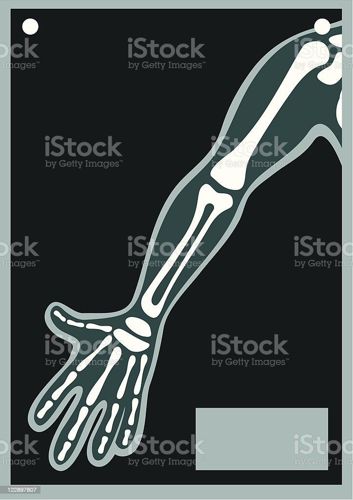 Human Body X Ray Arm vector art illustration