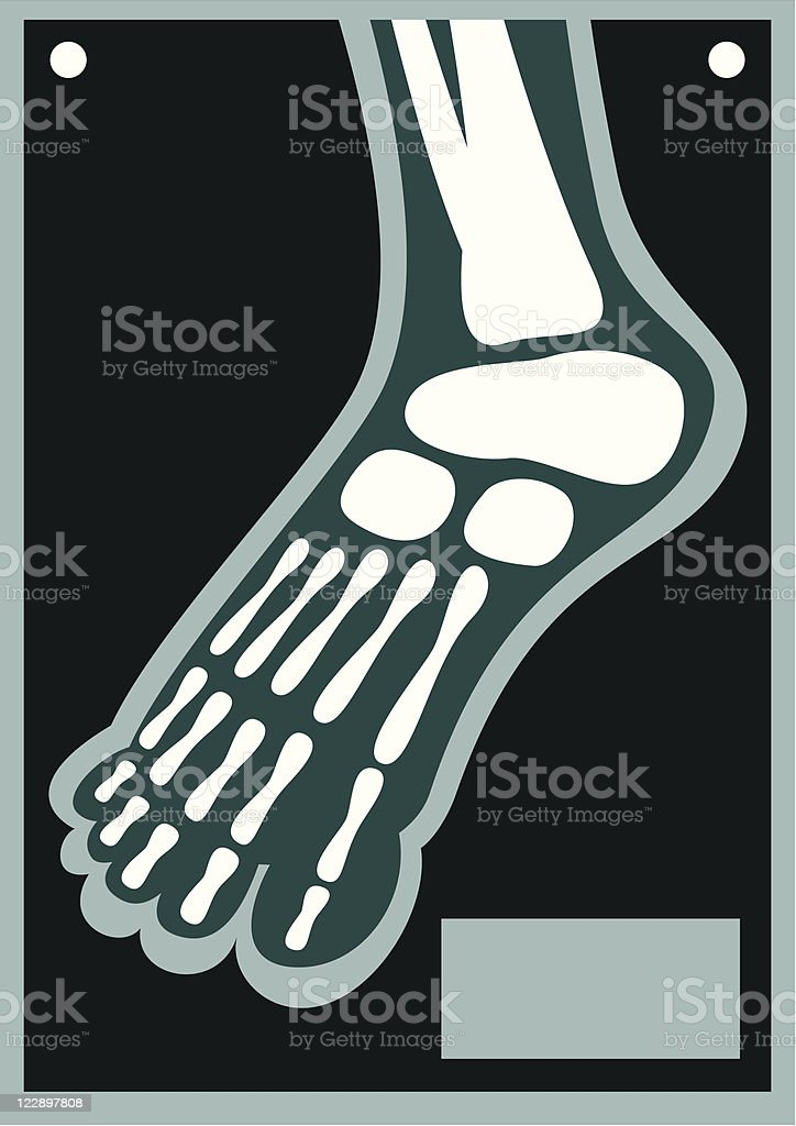 Human Body X Ray Foot royalty-free human body x ray foot stock vector art & more images of color image