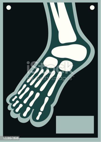 istock Human Body X Ray Foot 122897808