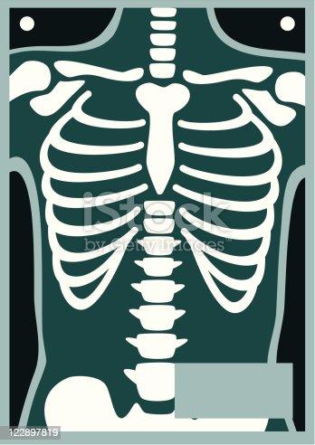 istock Human Body X Ray Rib Cage 122897819