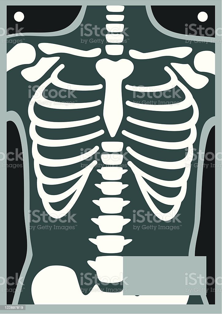 Human Body X Ray Rib Cage vector art illustration