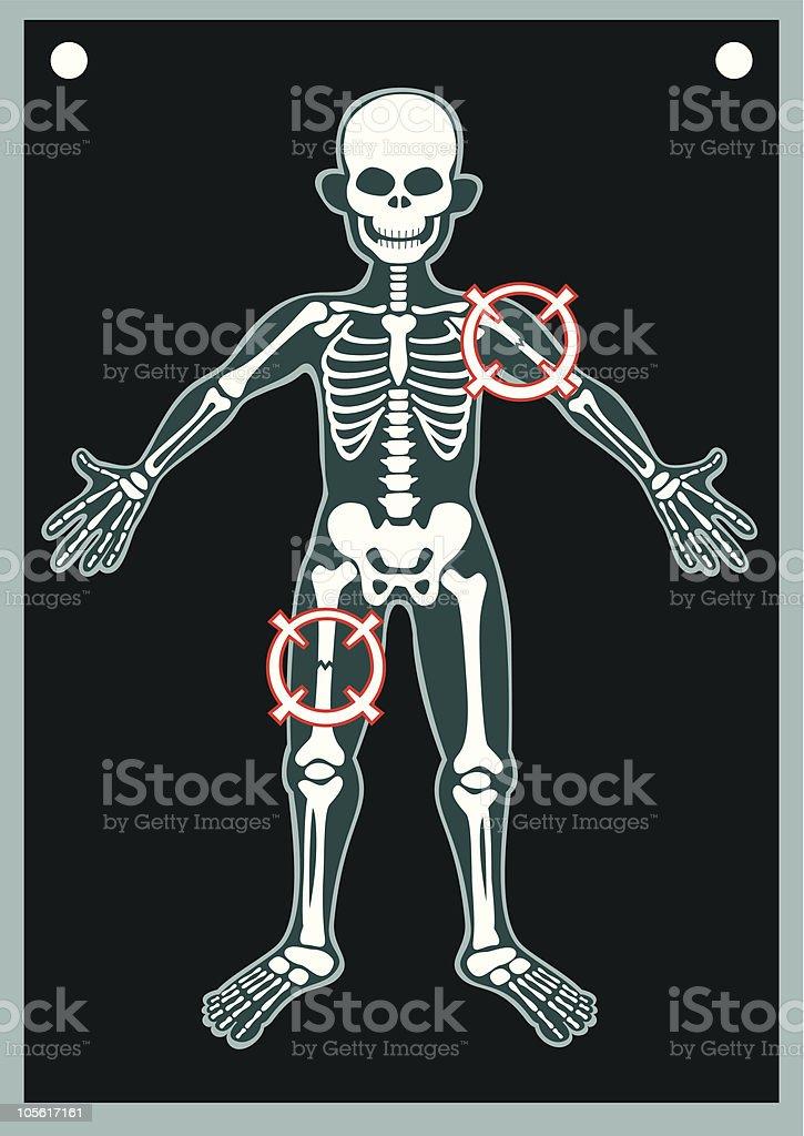 Menschlichen Körper Xray Stock Vektor Art und mehr Bilder von ...
