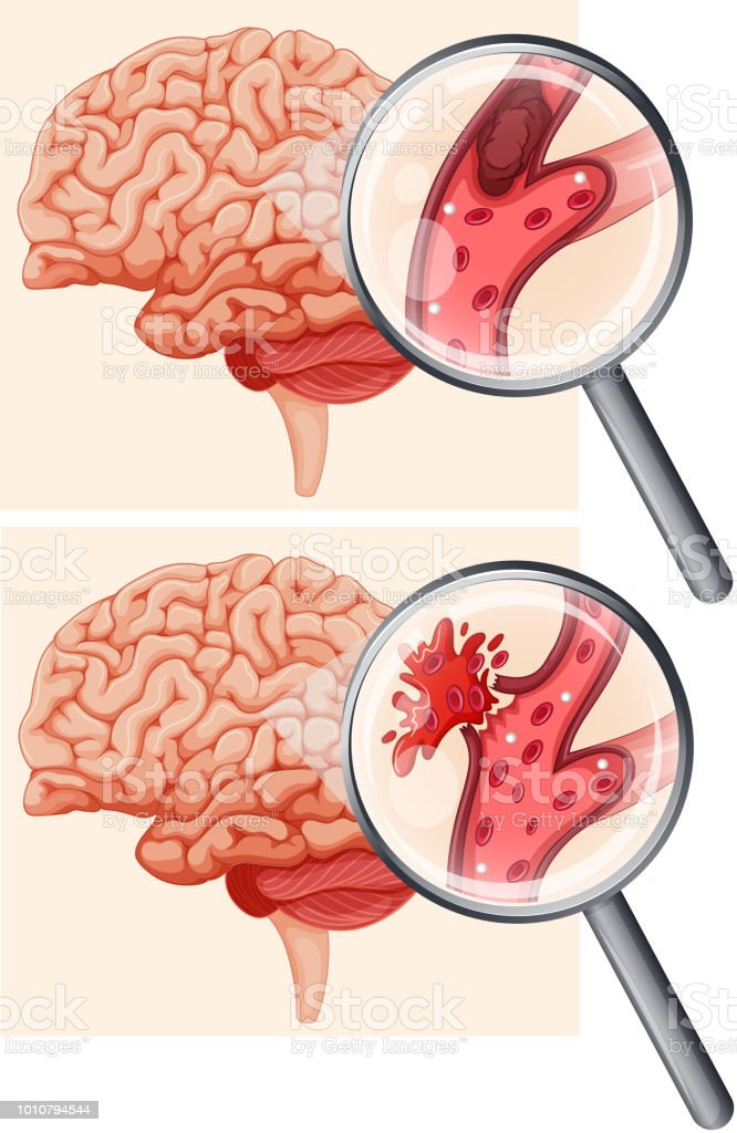 Human Brain And Hemorrhagic Stroke Stock Vector Art More Images Of