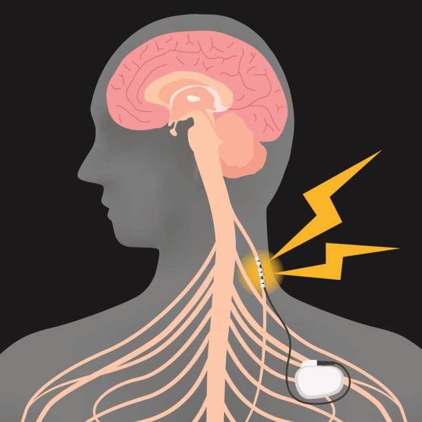 illustrazioni stock, clip art, cartoni animati e icone di tendenza di human brain and vagus nerve stimulation:vns, image illustration - elettrodo