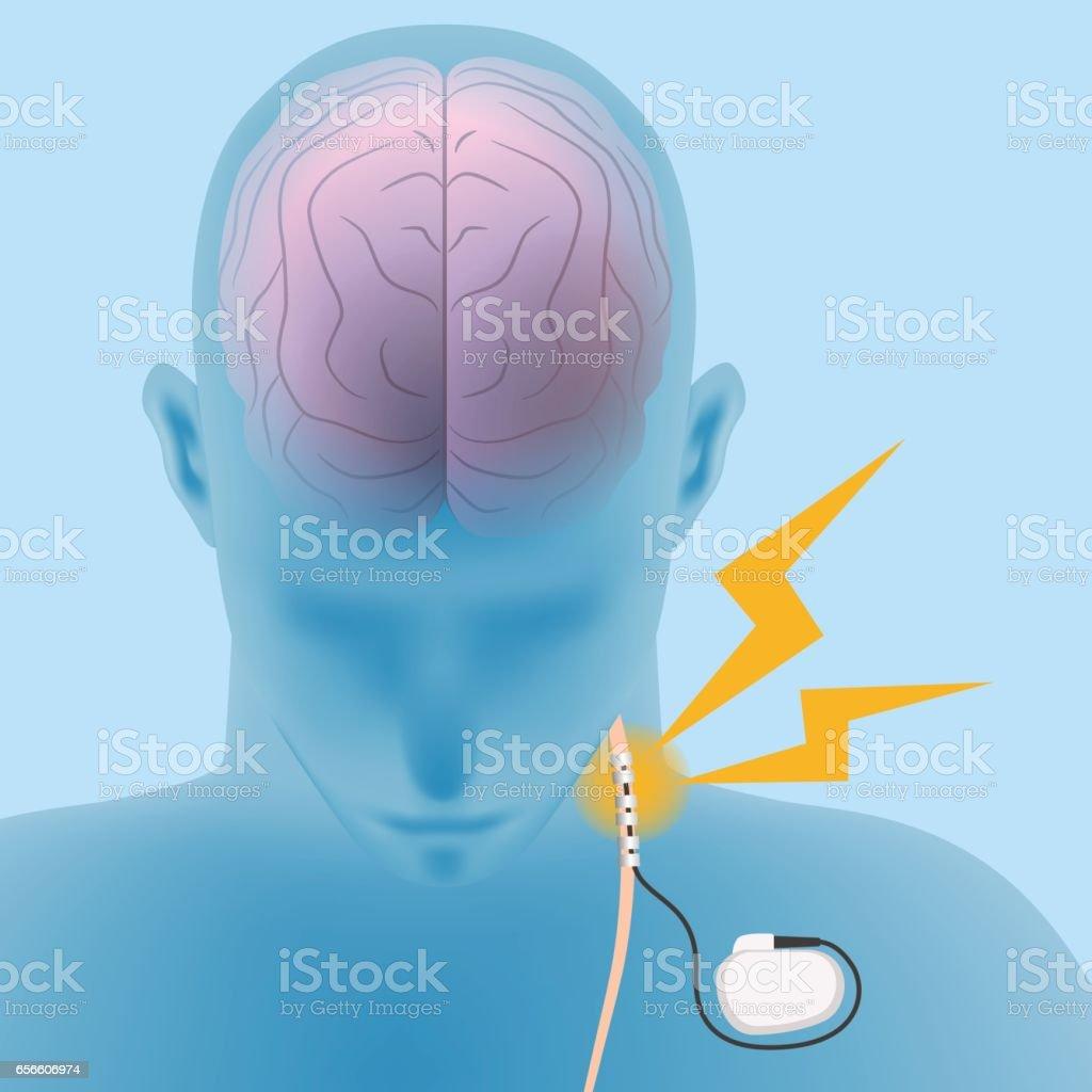 human brain and vagus nerve stimulation:VNS, image illustration vector art illustration