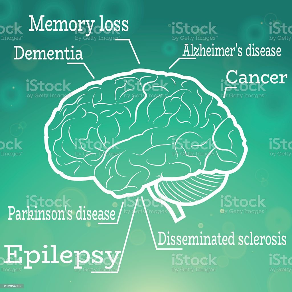 Human brain diseases vector art illustration