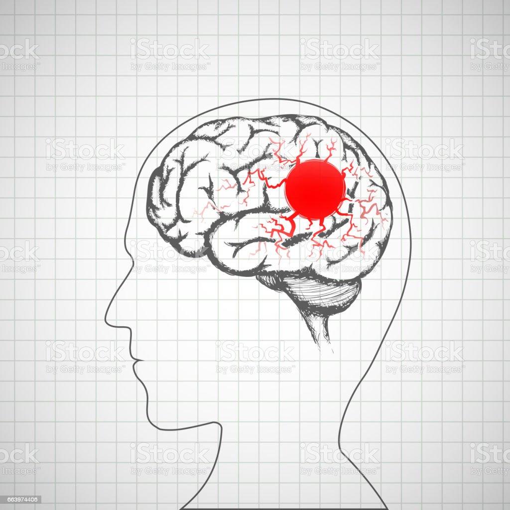 Human brain inside the head. Migraine disease. vector art illustration