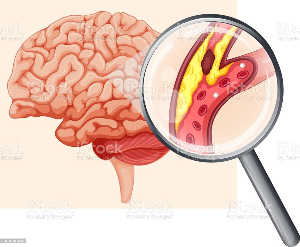 Human Brain With Atherosclerosis Stock Vector Art & More Images of ...