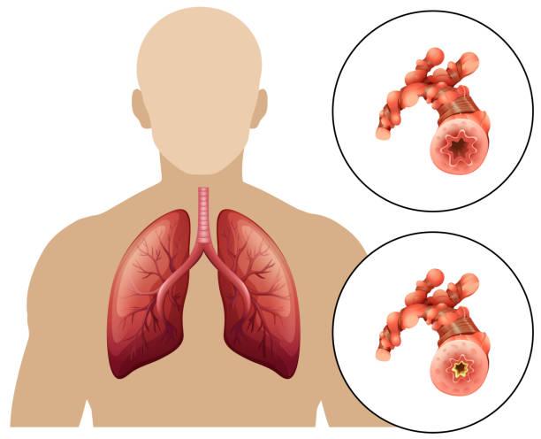 Human Chronic Obstructive Pulmonary Disease Human Chronic Obstructive Pulmonary Disease illustration chronic illness stock illustrations