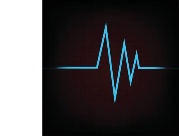 menschlichen Elektrokardiogramm auf dunkelroten Hintergrund – Vektorgrafik