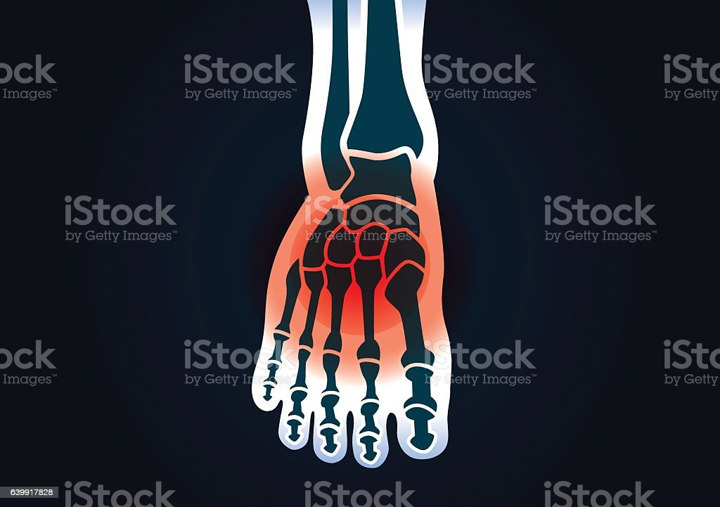 Human Foot Bone Have A Red Signal Stock Vektor Art und mehr Bilder ...