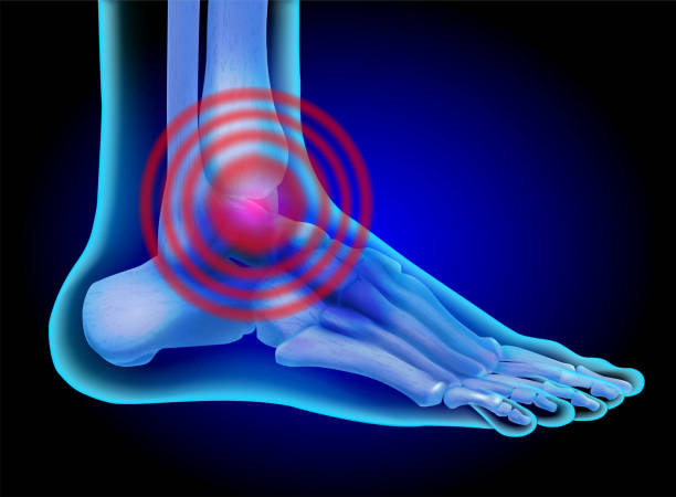 human foot. leg skeleton. joint inflammation. vector illustration. - physical therapy stock illustrations
