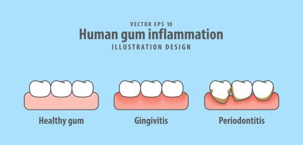 stockillustraties, clipart, cartoons en iconen met menselijke tandvlees ontsteking illustratie vector op blauwe achtergrond. tandheelkundige concept. - dentine