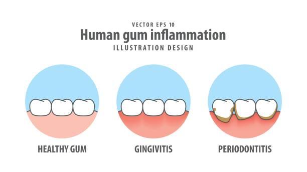 stockillustraties, clipart, cartoons en iconen met menselijke tandvlees ontsteking in cirkel illustratie vector op witte achtergrond. tandheelkundige concept. - dentine