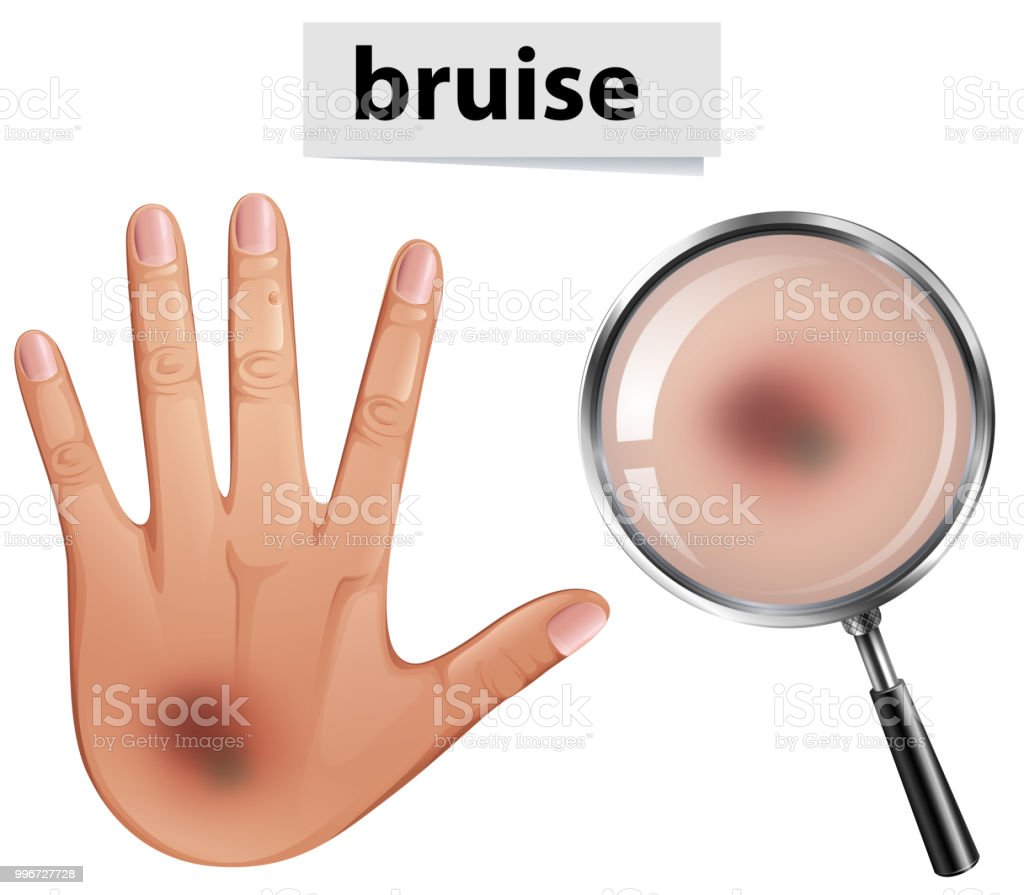 A Human Hand with Bruise vector art illustration
