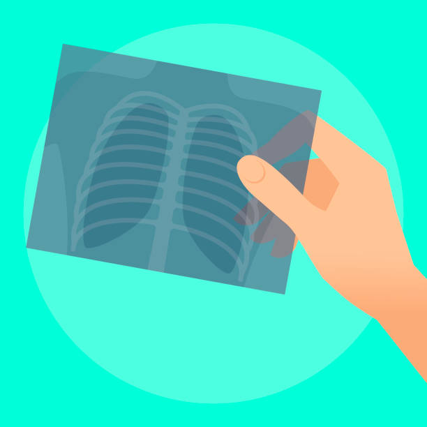 Human hand with x-ray image of lung. Human hand holds x-ray image of lung. Flat illustration of doctor's hand holding radiograph. Medicine, medical exam and diagnosis concept. Vector design elements for web, internet, presentation x ray image stock illustrations
