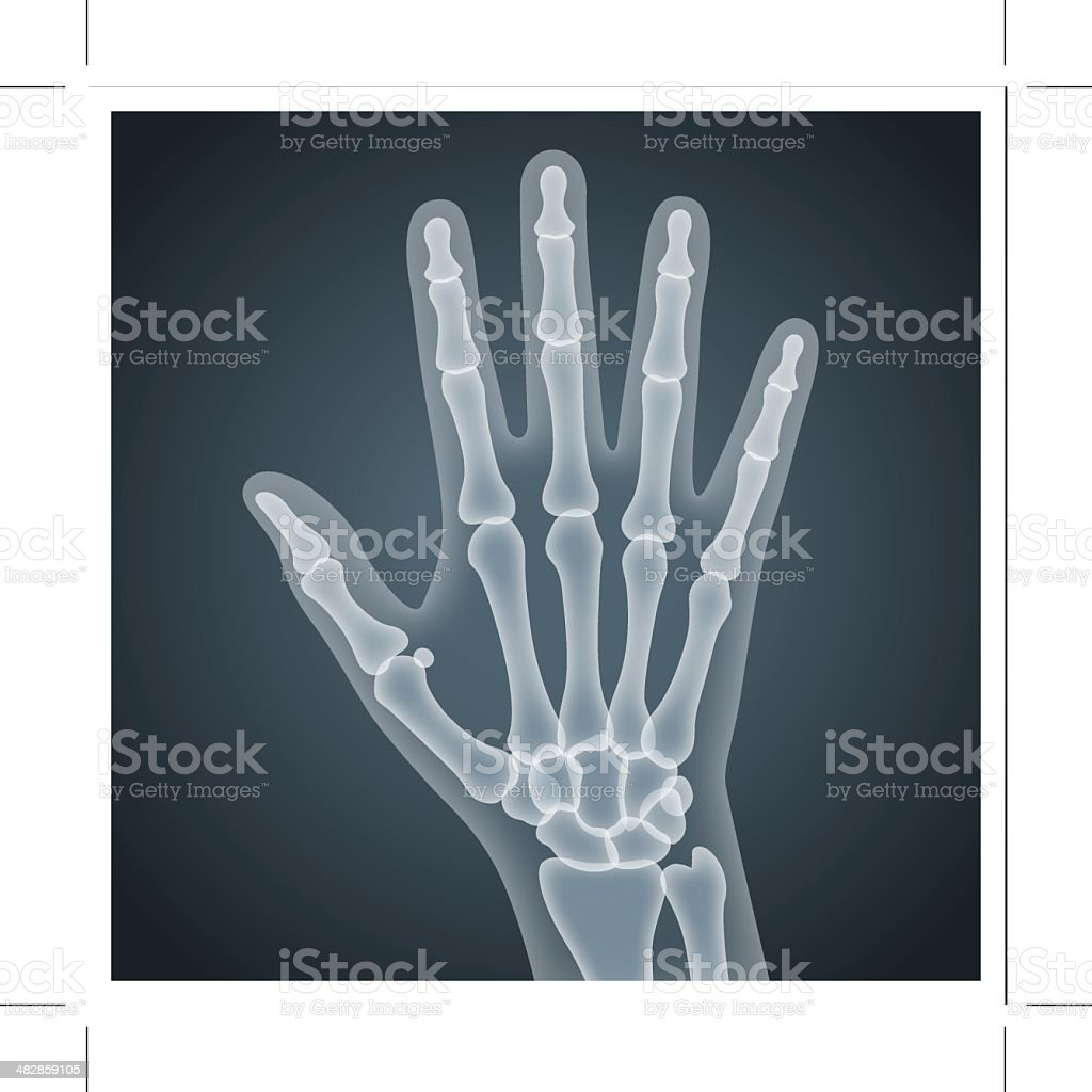 Human Hand Xray Stock Vector Art More Images Of Anatomy 482859105