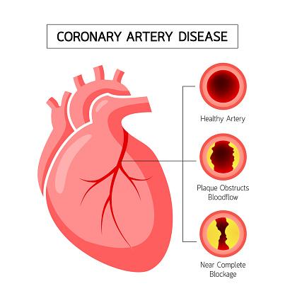 Human Heart With Coronary Artery Disease Info Graphic ...