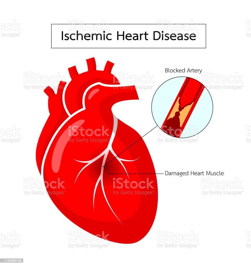 Corazón del enfermedad isquémica