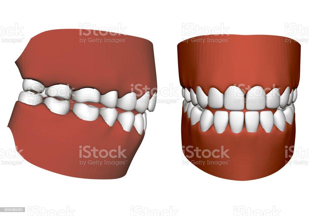 Menschliche Kiefer Mit Zähnen Stock Vektor Art und mehr Bilder von ...