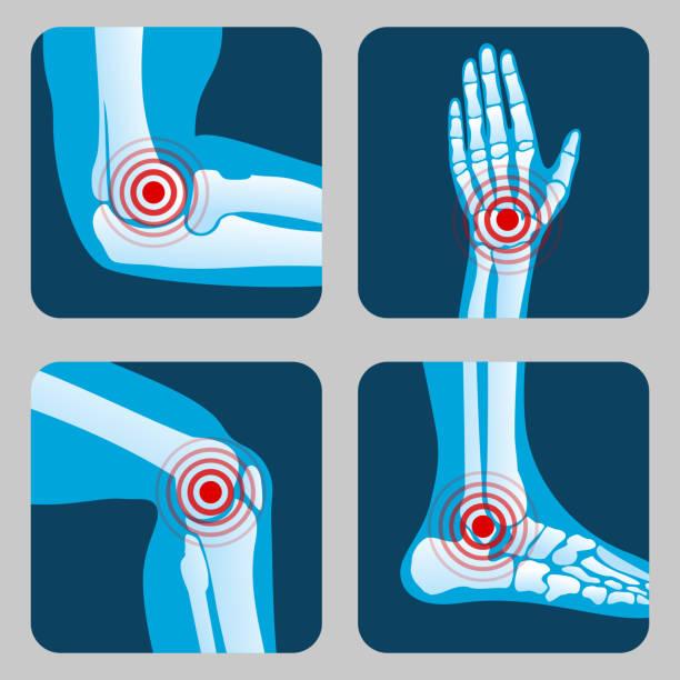 ilustrações, clipart, desenhos animados e ícones de humanas juntas com anéis de dor. infográfico de artrite e reumatismo. botões de vetor de médicos app - articulação humana