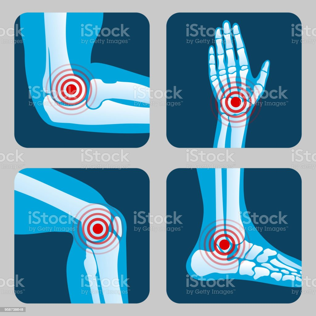 Human joints with pain rings. Arthritis and rheumatism infographic. Medical app vector buttons vector art illustration