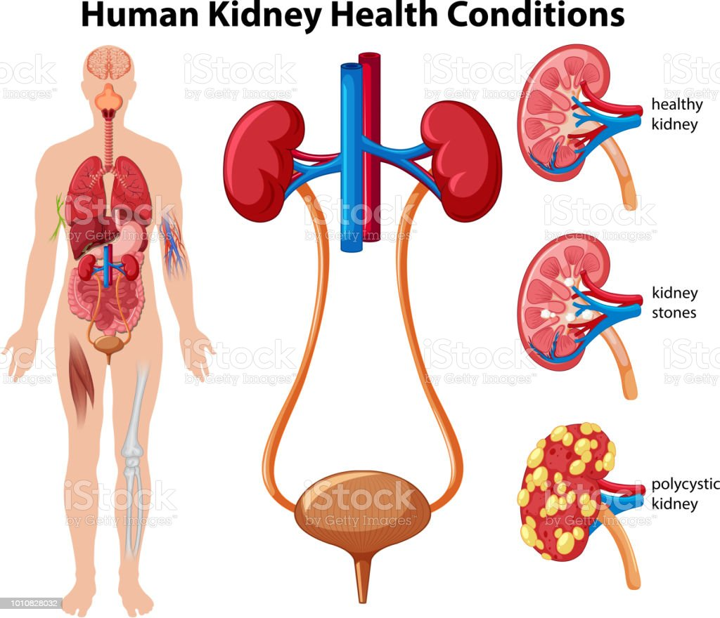Human Kidney Health Conditions royalty-free human kidney health conditions stock illustration - download image now