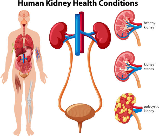 Human Kidney Health Conditions Human Kidney Health Conditions illustration the human body stock illustrations